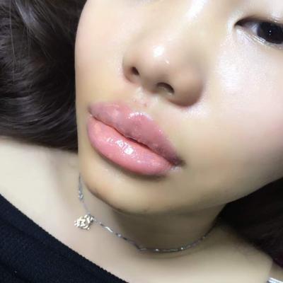 Lip Enhancement - Semi-Permanent Makeup. iBrow Microblading Studio, Hove