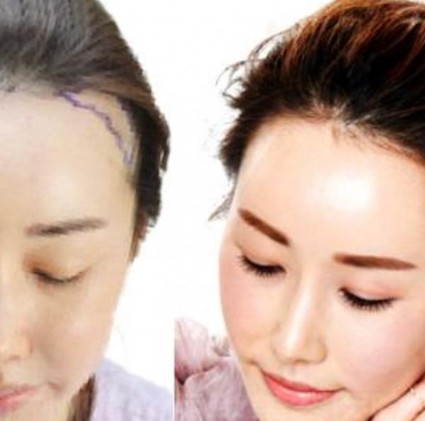 Hair Loss Restoration Microblading - iBrow Microblading Studio, Hove