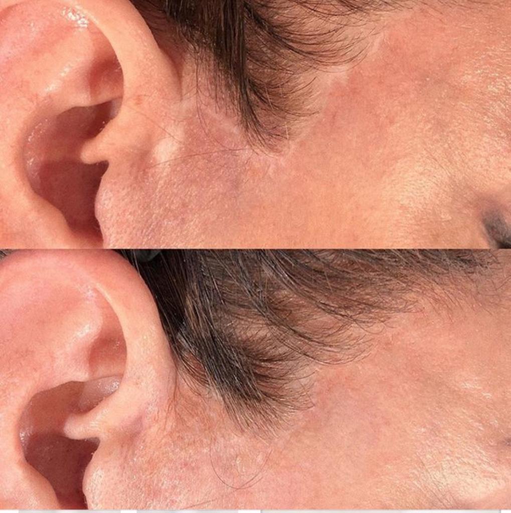 Scar Restoration Treatment - Microblading. iBrow Studio, Hove