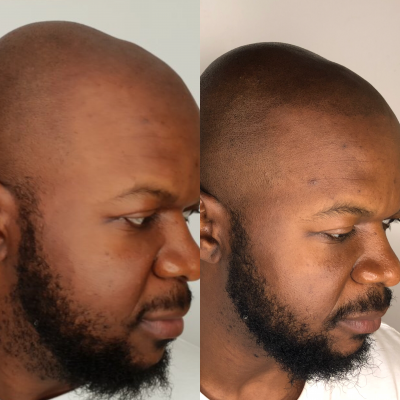 Scalp Micropigmentation Before and After Treatment. iBrow Studio, Brighton & Hove